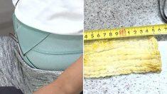 맹장 수술 후 복통 호소한 환자 배에서 나온 '35cm' 거즈