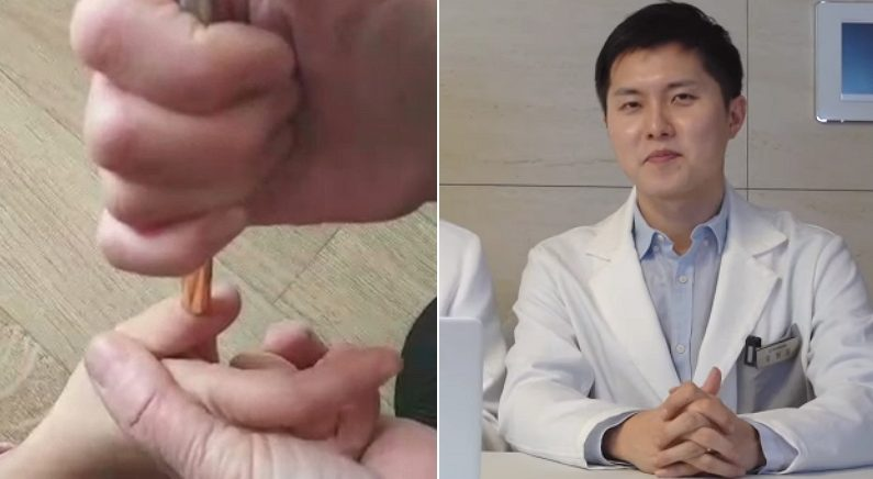 의사들도 체했을 때 손 따는지 직접 물어봤다 (영상)