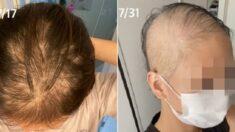 """일본 20대 여성 """"모더나 백신 맞고 한 달 만에 머리카락 다 빠져"""""""